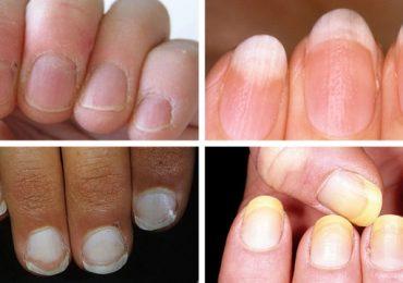 Ноктите могат да ни покажат от какво заболяване сме застрашени или вече имаме признаци за някакъв проблем