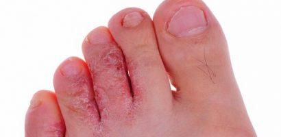 Евтин домашен лек за унищожаване на гъбичките по краката