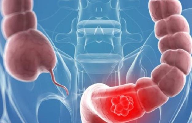 Прочистете дебелото черво, за да се избавите от редица здравословни проблеми