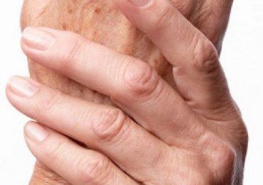 Грузински учени откриха най-добрия лек за артрит