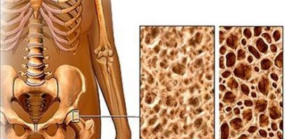 Домашен лек срещу остеопороза