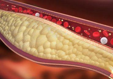 Тези 7 храни прочистват успешно артериите