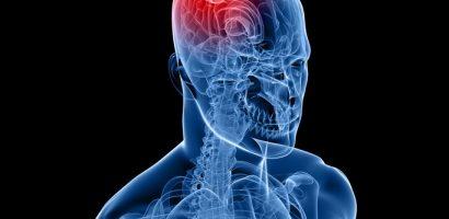 Ранни симптоми, алармиращи за наличието на мозъчен тумор