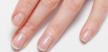 Ако полумесецът на някой от ноктите ви липсва, е доста притеснителен сигнал