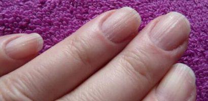 Ноктите ви може да алармират за много коварни болести. Научете се да разчитате сигналите!