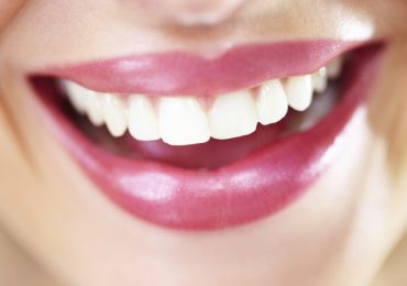 Топ рецепти за избелване на зъбите (II част)