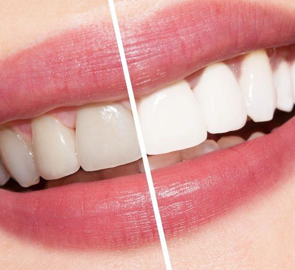 Топ рецепти за избелване на зъбите (I част)