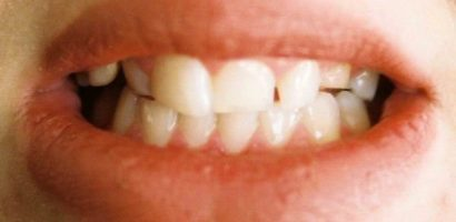 Какви опасности крие скърцането със зъби