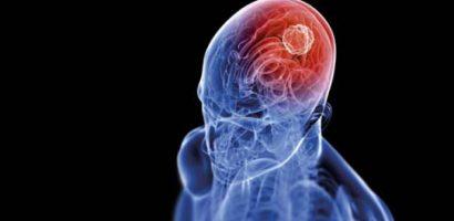Това са признаците, издаващи наличието на тумор в мозъка