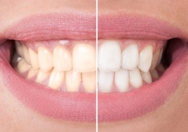 Ето как да избелите зъбите си само за 3 минути