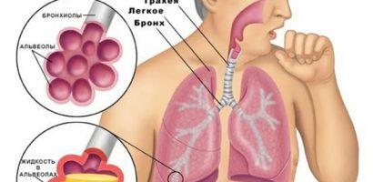 Тези рецепти церят пневмония като с вълшебна пръчка (II част)