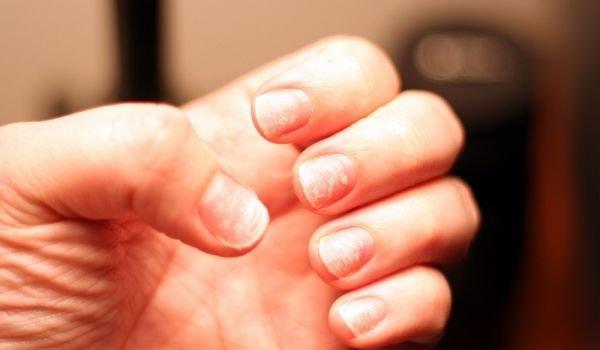 Дефицитът на този минерал е виновен за чупливите нокти и безсънието