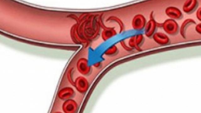 Внимание! Тези пет храни образуват кръвни съсиреци