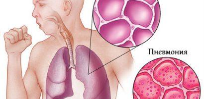 Тези рецепти церят пневмония като с вълшебна пръчка (III част)