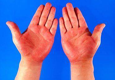 Вижте колко много издават ръцете за здравословното ви състояние (I част)