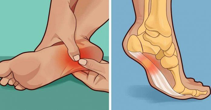 Имате ли неприятни болки в петата? Ето на какво се дължат и как можете да си помогнете!